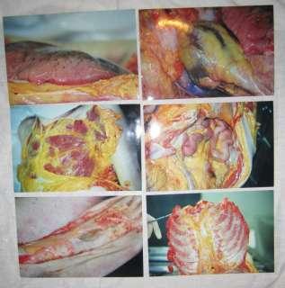photographs REAL GORE Medical GROSS corpse cadaver post mortem death
